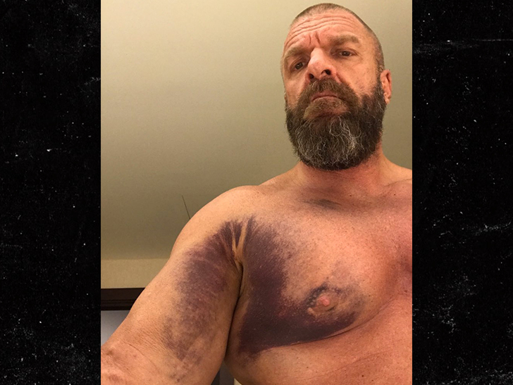 Triple H Gnarly Injury Pic After Tearing Chest Muscle
