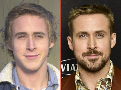 Ryan Gosling -- Good Genes or Good Docs?