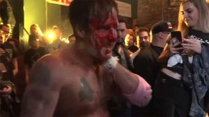 David Arquette Loses in Brutal and Bloody Wrestling Death Match