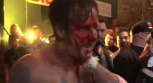David Arquette Loses in Brutal and Bloody Wrestling Deathmatch