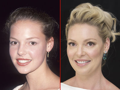 Katherine Heigl -- Good Genes or Good Docs?