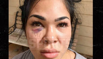 UFC's Rachael Ostovich Injury Photos Show Major Damage to Face and Body