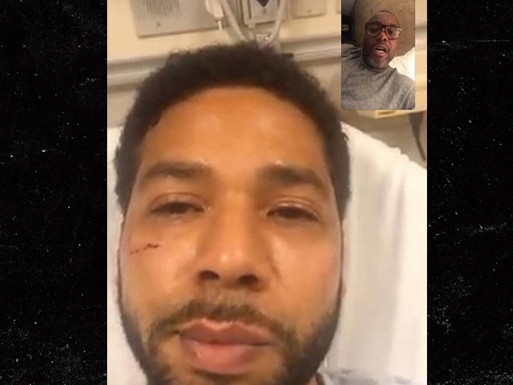 Image result for Jussie Smollett Won't Let Assault Stop Performance