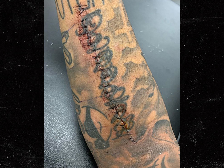 Patriots' Patrick Chung Shows Off Gnarly Super Bowl Scar ... 23 Stitches!!!