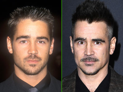 Colin Farrell -- Good Genes or Good Docs?!