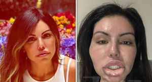 Liziane Gutierrez Suffers Face Swell After Another Botched Plastic Surgery