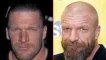 Triple H -- Good Genes or Good Docs?!