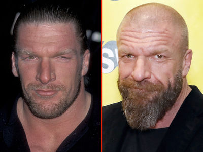 Triple H -- Good Genes or Good Docs?!