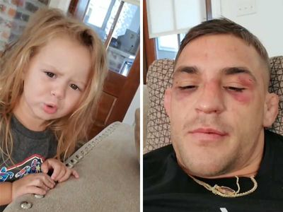 Dustin Poirier's Adorable Daughter, 'Oh No, Daddy's Got a Boo-boo!'