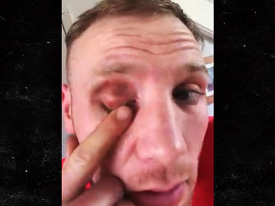 Conor McGregor Hit Me with Brutal, Cheap Shot on Video, Boxer Claims