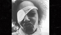 Mel B Sets Story Straight About Eye Problems, Says She's Recovering