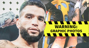 MMA Fighter Suing After Suffering Severed Leg In Gruesome Car Accident
