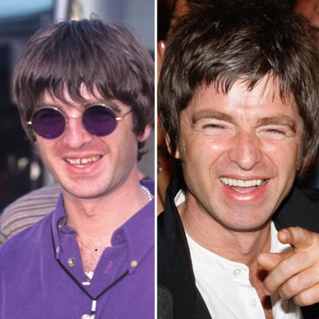 Noel Gallagher!