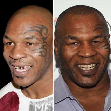 Mike Tyson!